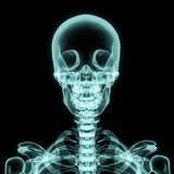Enthaltener Schädel des oberen Kastens des Röntgenstrahls lizenzfreie abbildung