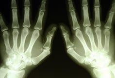 Entrega a radiografia foto de stock royalty free