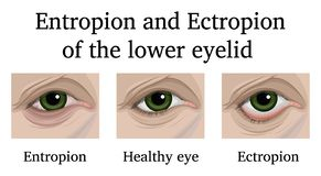 Entropion and Ectropion of the lower eyelid. Illustration of ophthalmic diseases Entropion and Ectropion of the lower eyelid royalty free illustration