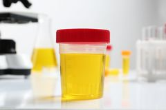 Envase con la muestra de orina para el análisis en la tabla imágenes de archivo libres de regalías