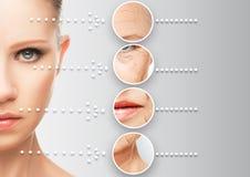 Envejecimiento de la piel del concepto de la belleza procedimientos antienvejecedores Fotografía de archivo