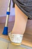 envejezca a la mujer con las medias de una compresión de la muleta que llevan Imágenes de archivo libres de regalías