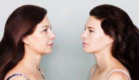 Envelhecimento da pele do conceito da beleza Fotos de Stock Royalty Free