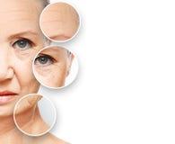 Envelhecimento da pele do conceito da beleza procedimentos antienvelhecimento, rejuvenescimento, levantando, aperto da pele facia fotografia de stock royalty free
