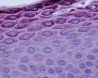 Epidermis. Light micrograph showing the stratum spinosum bottom and the stratum granulosum granular layer of the skin epidermis royalty free stock photos