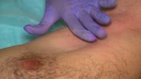 epilating有加糖的手套的美容师男性腋窝 男性秀丽治疗 股票录像