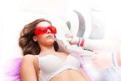 Epilation de laser Images stock