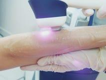 Epilation för borttagning för laser-hårarm Behandling i kosmetisk salong Royaltyfri Fotografi