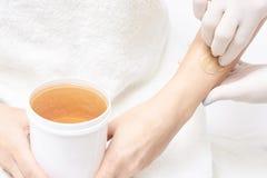 Epilation non désiré de cire de cheveux Jeune femme 15 procédure de traitement de salon de cosmétologie Cirage à la maison image stock