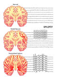 epilepsi vektor illustrationer