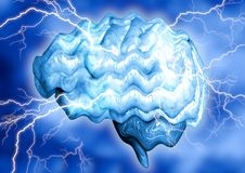 Epilepsy is a chronic brain disease caused by increased electrical activity of neurons. It manifests through involuntary