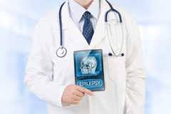 Epilepsy diagnosis. Doctor showing diagnosis of epilepsy Stock Photo