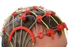 Epilepsy examination. Patient on the epilepsy examination (isolated stock photo