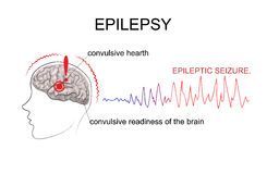 EPILEPSY, factors of emergence Stock Image
