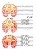 Epilepsy. Medical illustration of the various symptoms of epilepsy Stock Photography