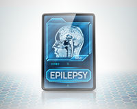 Epileptic brain. Modern tablet displaying diagnosis of epilepsy Stock Images
