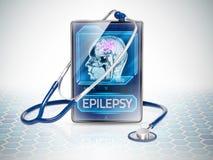 Epileptic brain. Modern tablet displaying diagnosis of epilepsy Royalty Free Stock Image