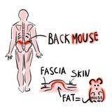 Episacral lipoma lub tylna mysz royalty ilustracja
