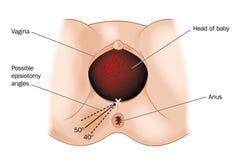 Episiotomy Royalty Free Stock Image