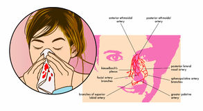 Epistaxis Symptoms. Vector medical illustration of the symptoms of epistaxis (nose bleeds vector illustration