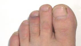 A equimose no dedo do pé video estoque