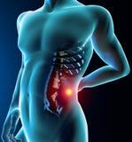 Equipaggi il dolore alla schiena, il dolore, lo scheletro dei raggi x, spina dorsale Immagini Stock