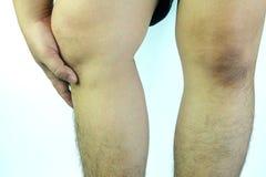 Equipaggi il dolore del ginocchio della tenuta della mano del ` s isolato su bianco fotografie stock libere da diritti