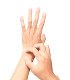 Equipaggi la mano di scratch della mano su fondo bianco per il concetto sano Fotografia Stock Libera da Diritti