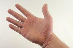Erbitterung von Psoriasis in den Händen Lizenzfreie Stockbilder