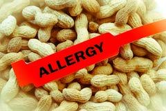 Erdnuss-Allergie-Armband Stockfotos