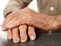 Erfahrene Arbeiter mit artritis Lizenzfreie Stockbilder