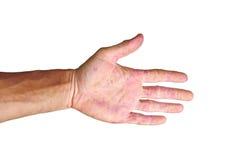 Eritema paciente de la palma en los puntos rojos de la inflamación aislados Imágenes de archivo libres de regalías