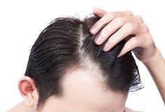 Ernstes Haarausfallproblem des jungen Mannes für Gesundheitswesenshampoo und Stockfotos