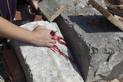 Ernstige verwonding op de hand van een meisje Stock Foto's
