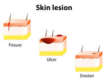 Erosion, Ulcer and Fissure. Skin lesion Stock Photo