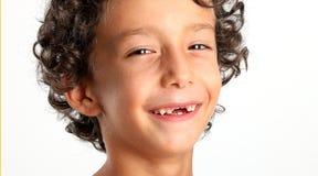 Erste Babymilch oder vorübergehende Zähne fallen heraus Stockbild