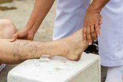 Erste Hilfe für Klammerverletzung Stockfoto