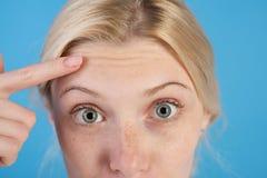 Erste Knicken Gesichts-Showfalten der Frau wundernde auf Stirn Nahaufnahmeportrait getrennt auf Wei? Antialtershautcreme Kosmetik lizenzfreie stockfotos