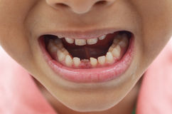 Erstes der Milchzähne zahnlos Lächeln heraus lizenzfreie stockfotografie