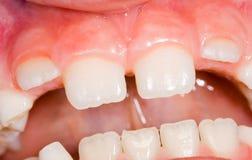 Erupción de diente del niño Foto de archivo libre de regalías