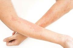 Erupciones de piel, dermatitis de contacto de las alergias, alérgico a las sustancias químicas Imágenes de archivo libres de regalías