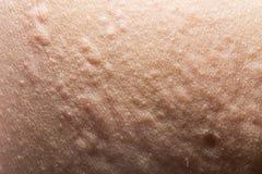 Eruzione di allergia o di orticaria Fotografia Stock