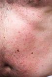 Eruzione o allergia del sole Fotografia Stock Libera da Diritti