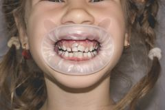 Erwachsene bleibende Zähne, die vor den Milchzähnen des Kindes kommen: Haifischzähne lizenzfreie stockfotos