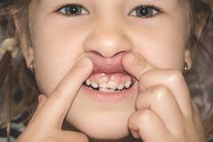 Erwachsene bleibende Zähne, die vor den Milchzähnen des Kindes kommen: Haifischzähne stockfotografie
