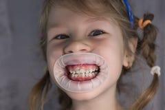 Erwachsene bleibende Zähne, die vor den Milchzähnen des Kindes kommen: Haifischzähne stockbilder