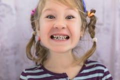 Erwachsene bleibende Zähne, die vor den Milchzähnen des Kindes kommen: Haifischzähne lizenzfreies stockfoto