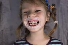Erwachsene bleibende Zähne, die vor den Milchzähnen des Kindes kommen: Haifischzähne stockfotos