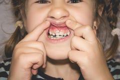 Erwachsene bleibende Zähne, die vor den Milchzähnen des Kindes kommen: Haifischzähne lizenzfreies stockbild