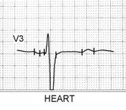 Esame dell'elettrocardiogramma che prova l'attività elettrica del cuore Immagini Stock Libere da Diritti